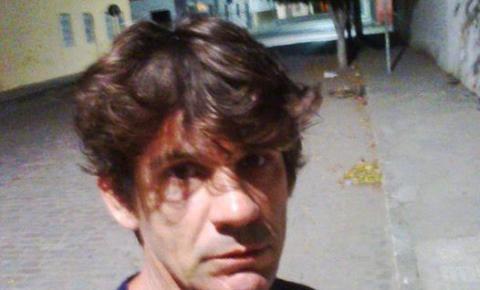 Homem é baleado após sofrer tentativa de assalto em Capim Grosso