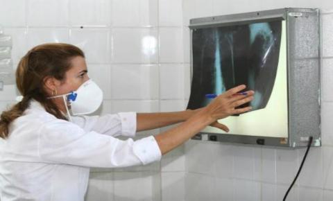 Alerta: Brasil possui 34% dos casos de coinfecção de tuberculose e HIV do mundo