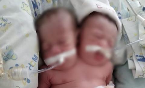 Bebê nasce com duas cabeças, dois corações e quatro pulmões