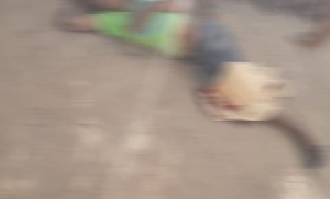 Jovem sofre fratura exposta em acidente próximo a Novo Paraíso de Jacobina