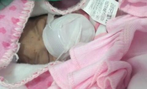 Com máscara de oxigênio suja, copo descartável é usado para reanimar bebê em hospital na Bahia