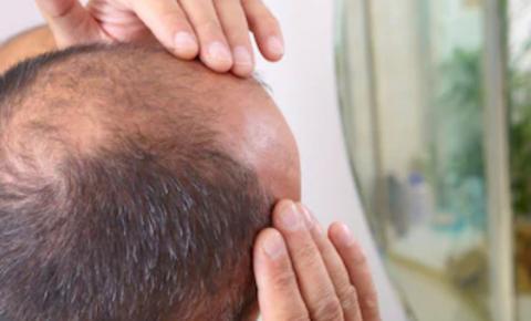Como o uso de  anabolizantes pode  influenciar a queda de  cabelo?